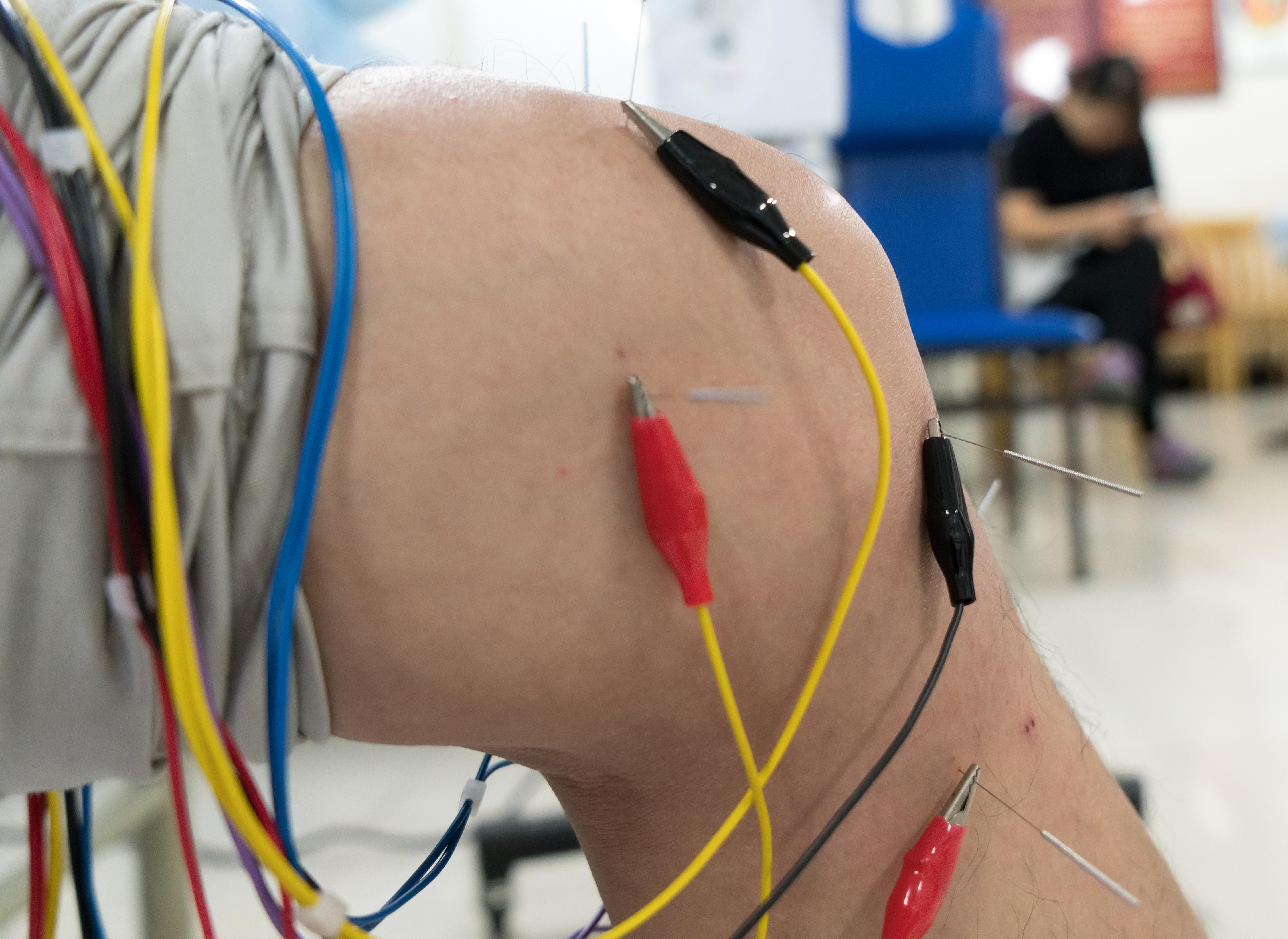 Electro-Stim Acu-Therapy