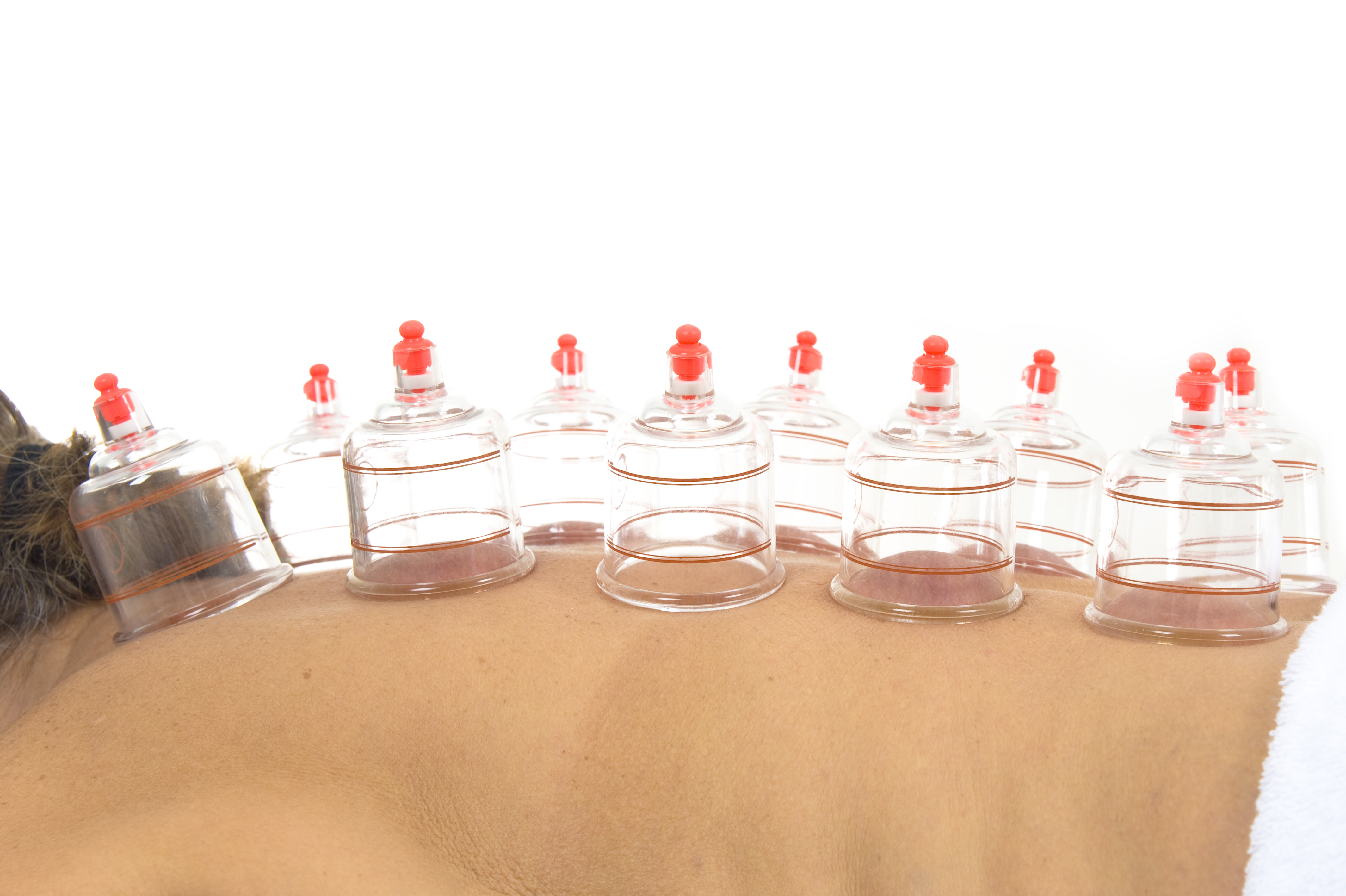 Cupping Can Relieve Pain and Ache